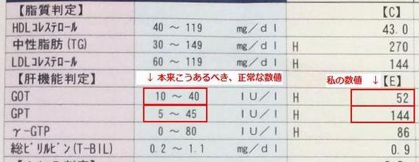 GPT値とGOT値が異常値となっている血液検査結果